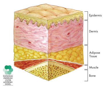 illustration of a cross-section of normal, healthy skin