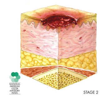 illustration of cross-section of a stage 2 pressure sore