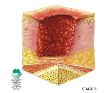 illustration of cross-section of a stage 3 pressure sore