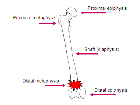 Diagram of long bone showing the locations of the metaphysis, epiphysis and diaphysis.
