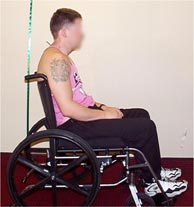 Figure 1: The traditional wheelchair configuration (still used in many medical centers), with a backrest that stops at the upper back and a backrest angle to the floor of 90 degree, causes the buttocks to slide forward and the neck to thrust frontward. Proper alignment of ears over shoulders over hips is not possible in this configuration.