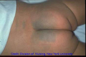 Pressure Ulcers In Spinal Cord Injury