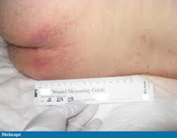 Stage 1 pressure ulcer, pale complexion.