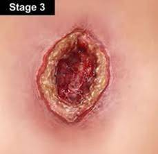 Stage 3 pressure ulcer - pale complexion.