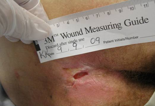Wound care: Measure and monitor.
